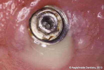 Article Summary: Peri-implant care with the CO2 laser: In vitro and in vivo results