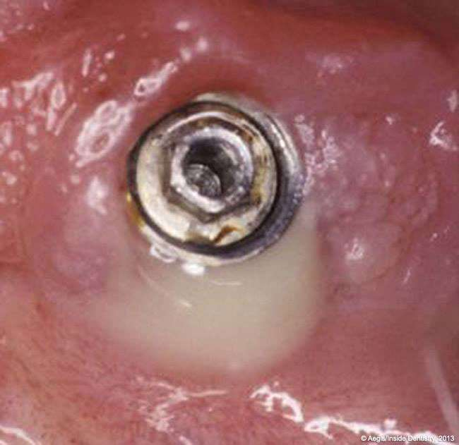 Image shows a case of Perio-Implantitis pre-treatment - (Image Courtesy of Aegis/Inside Dentistry http://www.dentalaegis.com/id/)