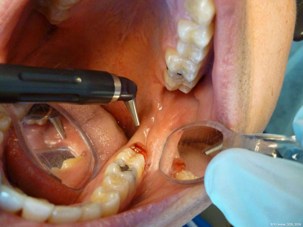 dental laser operculectomy