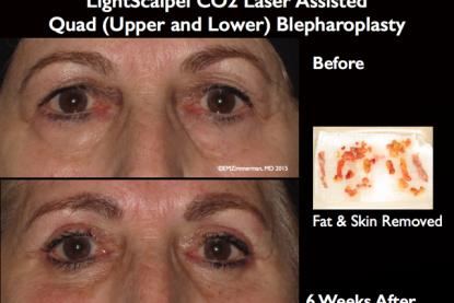 LightScalpel CO2 Laser Blepharoplasty