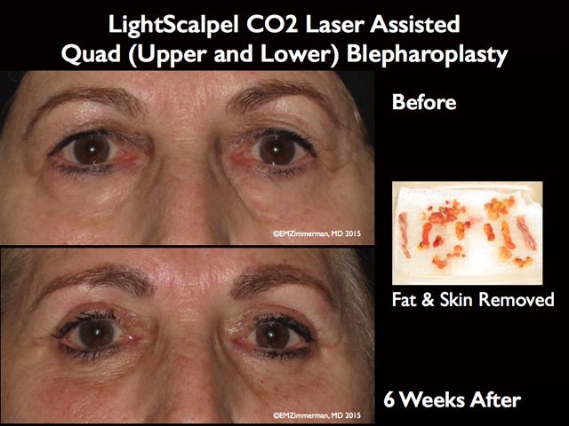 LightScalpel CO2 laser Blepharoplasty 1