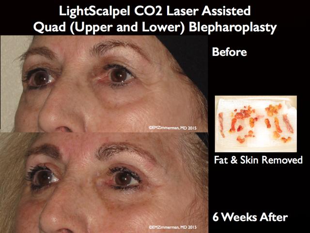 LightScalpel CO2 laser Blepharoplasty 2