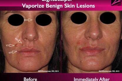 LightScalpel CO2 Laser Removal of Benign Skin Lesions