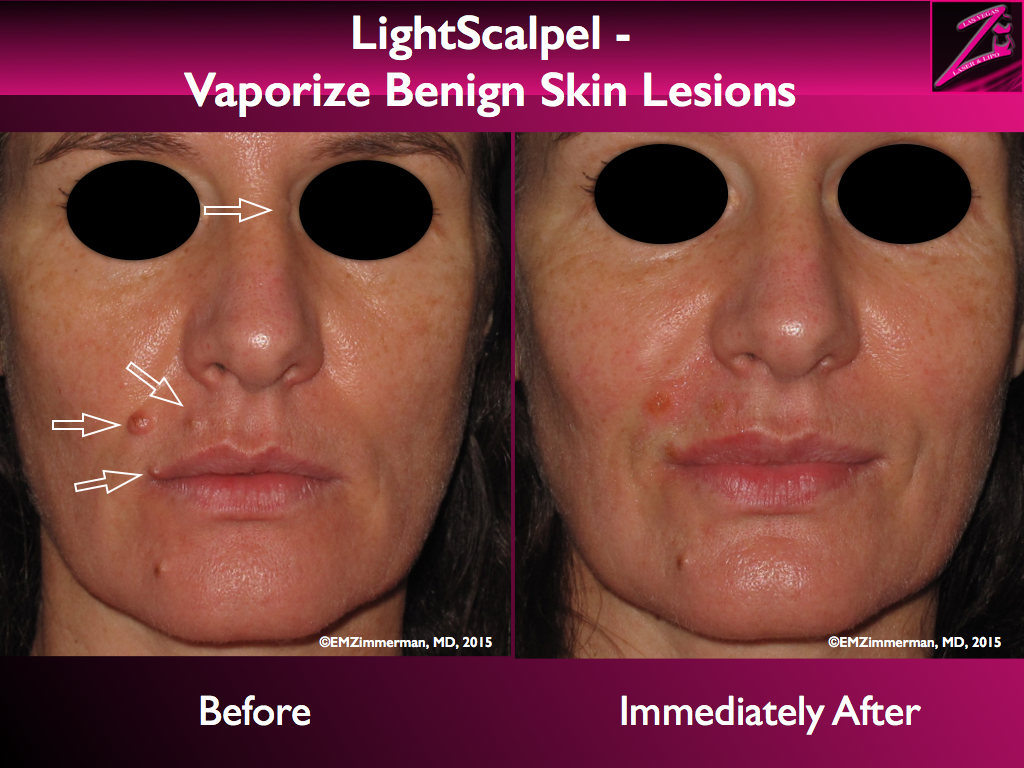 LightScalpel CO2 laser removal of benign skin lesions 1