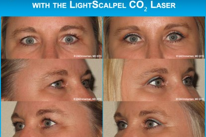 Upper Blepharoplasty with the LightScalpel CO2 Laser