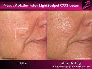 Nevus Ablation Lightscalpel CO2 Laser ex2