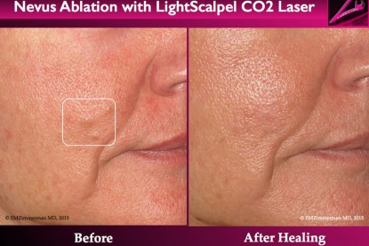 Nevus ablation with LightScalpel