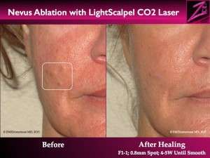 Nevus Ablation Lightscalpel CO2 Laser