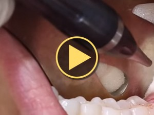 Lightscalpel Dental CO<sub>2</sub> Laser Assisted Wisdom Tooth Video