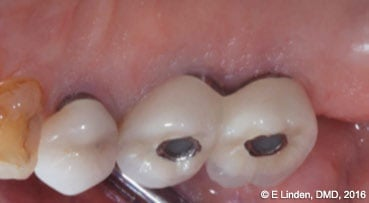 Figure 11B: Palatal view at 6 months' post-op. No signs of infection are present, and the pocket depth was significantly reduced