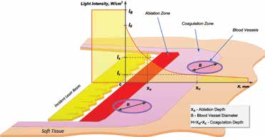 Figure 2: Simplified graphical representation of laser beam intensity attenuated inside the soft tissue