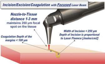 Figure 3: Laser-tissue incision with focused (0.25 mm spot size) laser beam. Defocused beam (approx. 0.8 mm spot size) with reduced fluence coagulates the tissue
