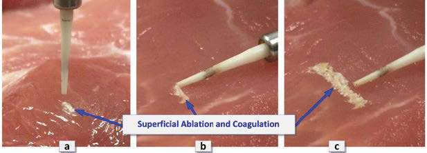 Figures 3A-3C: Superficial laser ablation and coagulation of the soft tissue (porcine) as perio tip moves at several mm/sec. 3A. Perio tip oriented is normal (within a few degrees) to the surface of the tissue. 3B. Perio tip oriented parallel (within a few degrees) to the surface of the tissue surface. 3C. Multiple sideway passes spaced by 0.5-1 mm