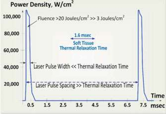 Figure 4: SuperPulse explained: High-power, short laser pulse duration maximizes soft tissue removal rate and keeps adjacent tissue cool