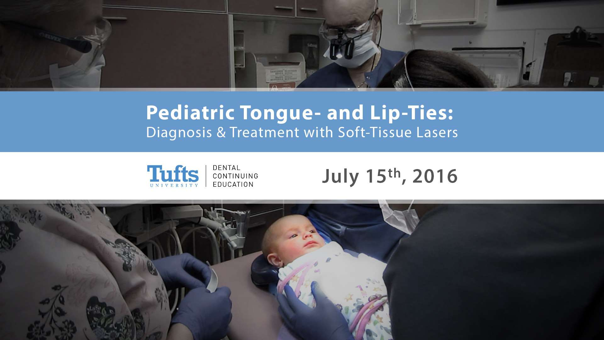 tufts laser in pediatrics