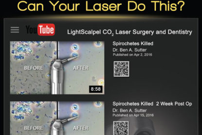 Can Your Laser Do This? – Spirochetes Killed