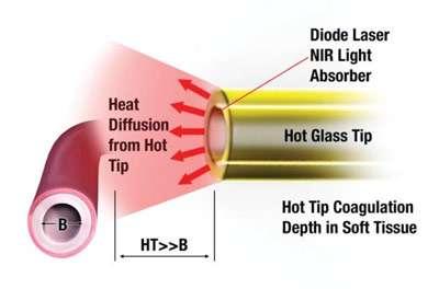 dental diode laser cutting