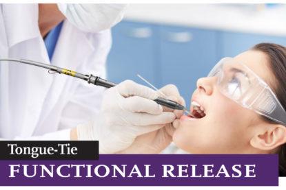 Tongue-Tie Functional Release