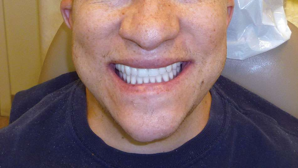 Figure 11. Final delivery. Patient with new dentures.