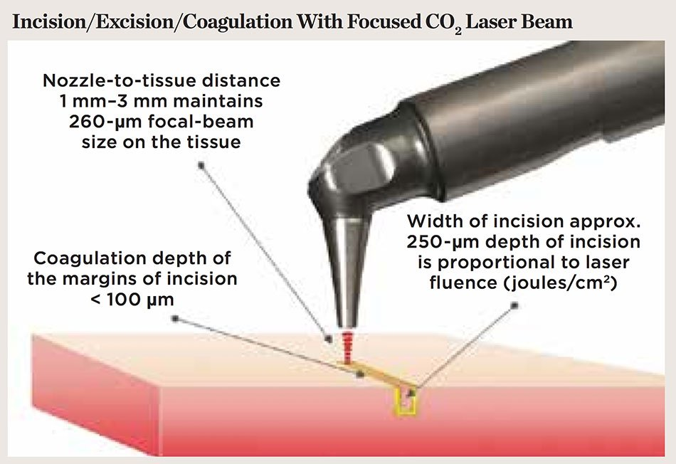 Figure 4. Laser-tissue incision with focused (0.25-mm spot) laser beam. Defocused beam (approximately 0.8-mm spot with nozzle approximately 10 mm from the tissue) with reduced fluence coagulates the tissue.