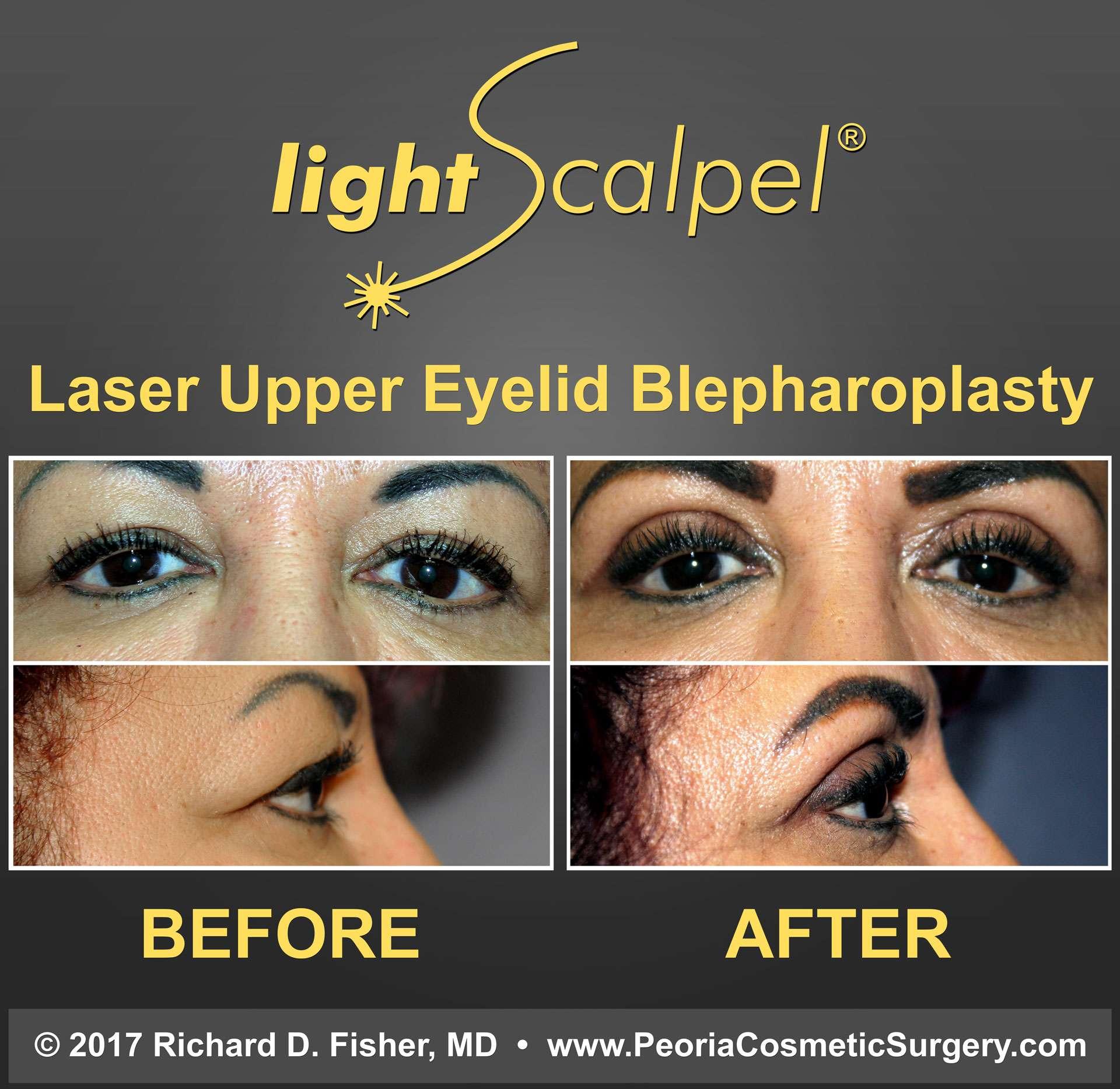 Laser Upper Eyelid Blepharoplasty Results