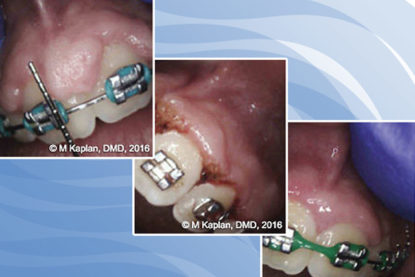 Gingival Enlargement and CO<sub>2</sub> Laser Gingivectomy