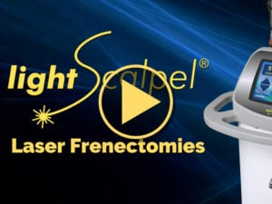 Laser Frenectomies Video