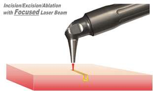 Figure 4. Incision / excision / ablation with a focused laser beam.