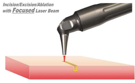 Figure 2 Incision / excision / ablation with a focused laser.