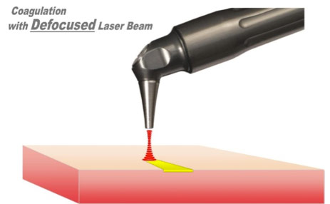 Figure 3 Coagulation with a defocused laser beam.