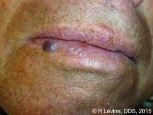 capillary hemangioma of the lip