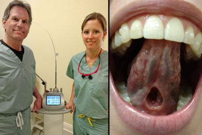 Dr. Brynn Leroux's laser frenectomy and with new LightScalpel laser