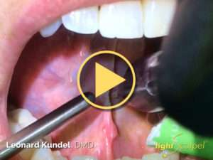 Laser Tongue-Tie Revision – Leonard Kundel, DMD Video