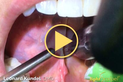 Laser Tongue-Tie Revision – Leonard Kundel, DMD
