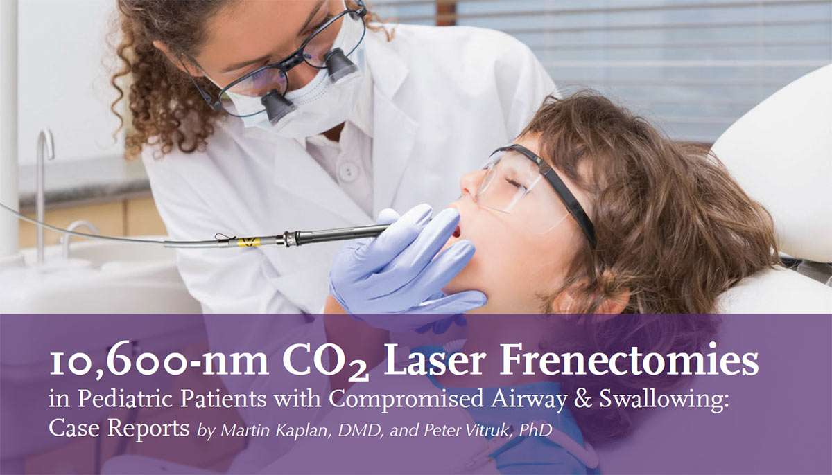 pediatric co2 laser frenectomy