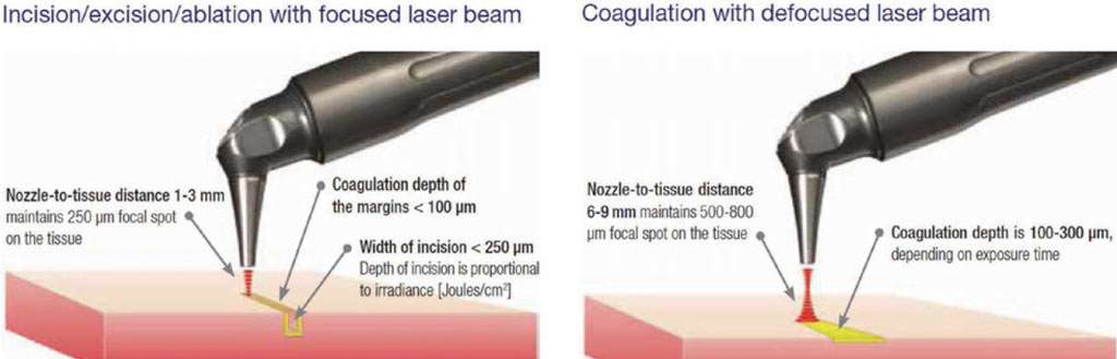 Laser handpiece distance for cutting and coagulating