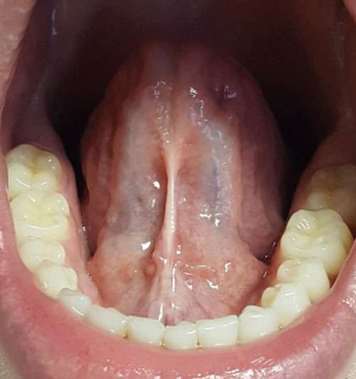 tongue tie before frenectomy