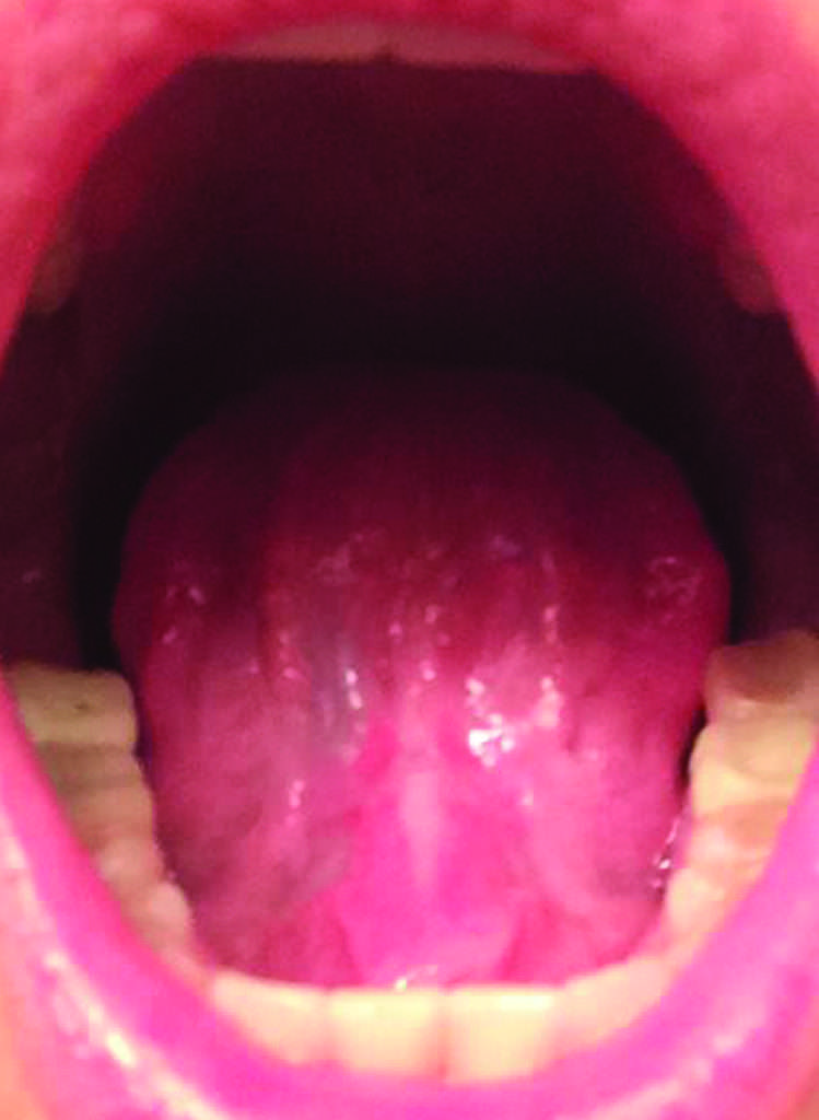 Completely healed, scar-free tongue 4 weeks after
