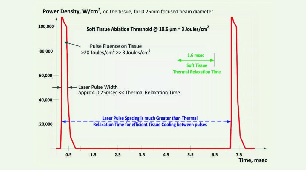 SuperPulse settings feature high peak power and short pulse