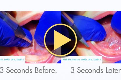 3 Second Tongue-Tie Release by Richard Baxter, DMD, MS