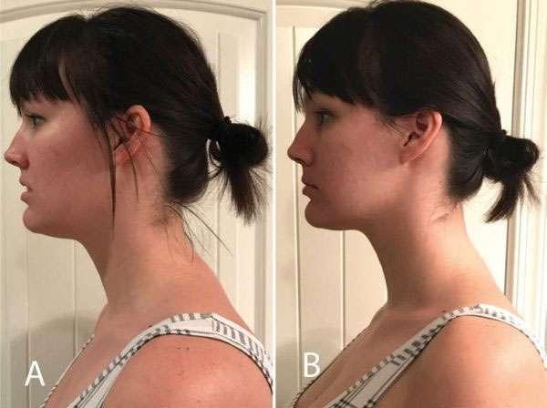 Orofacial Myofunctional Therapy 2 Posture