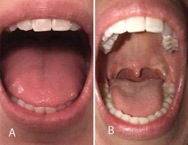 Orofacial Myofunctional Therapy 5 Mallampati score