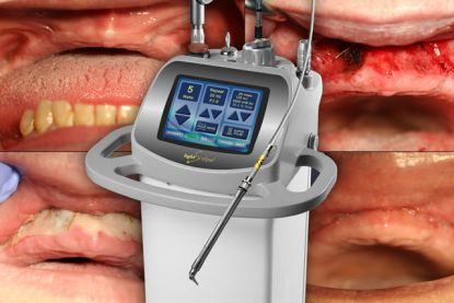 LightScalpel Laser Vestibuloplasty Results