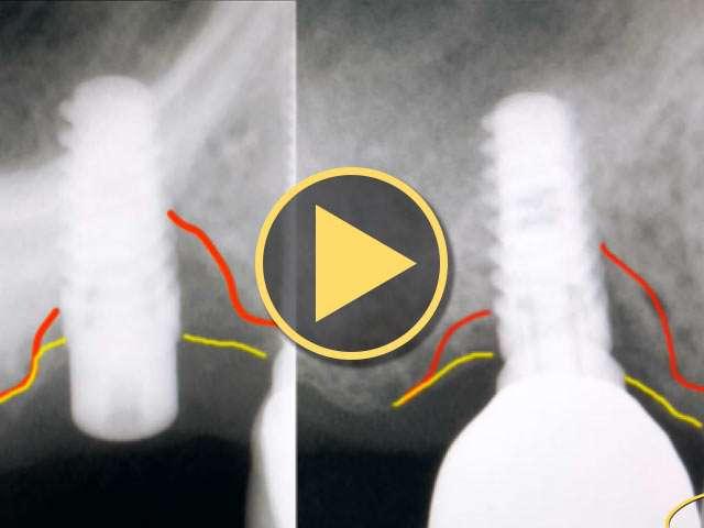 laser peri-implantitits
