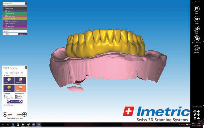 Figure 18a. The updated CAD design images for a full-arch implant-supported prosthesis (BruxZir Solid Zirconia Full-Arch Implant Prosthesis [Glidewell Laboratories]) were sent for clinical review to evaluate the contours and cleansability prior to fabrication.
