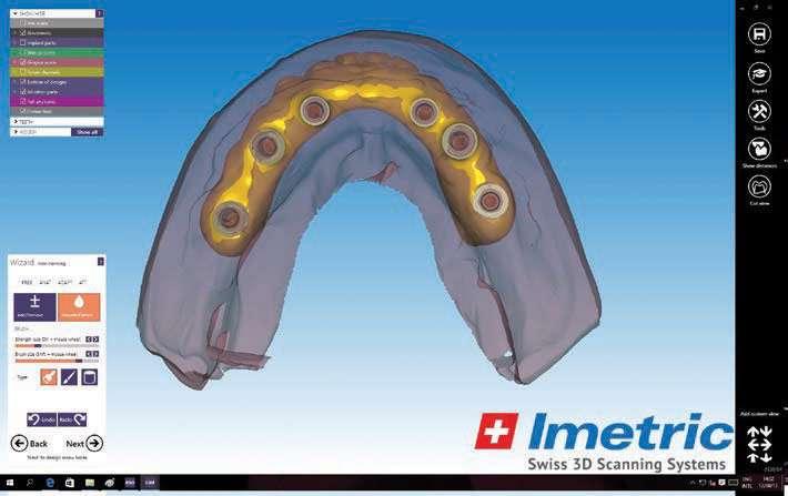 Figure 18c. Intaglio of designed prosthesis.