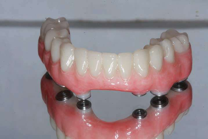 Figure 19. The secondary PMMA provisional implant prosthesis with the appropriate gingival stain applied. This prosthesis was delivered to ensure the provisional was duplicated in the final prosthesis.