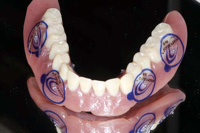 Figure 4. Fiduciary markers (Suremark) on the approved lower denture for dual-scan protocol.