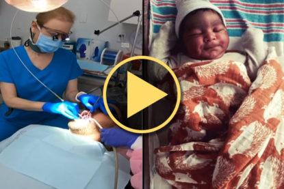 Leslie Haller, DMD, and LightScalpel laser frenectomy helps baby boy