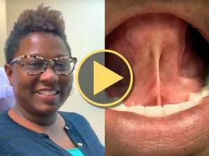 Tongue-Tie Release Patient Experience and Results – Pamela Marzban, DDS Video